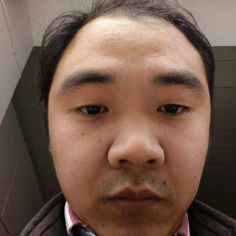 减肥中的胖子掉头发